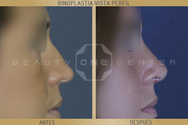Rinoplastia estética en TodoEstetica.com