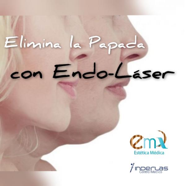 ENDOLIFTING PAPADA en TodoEstetica.com