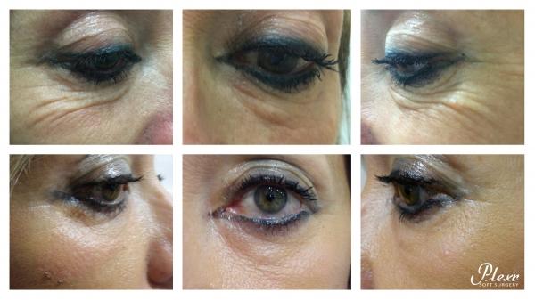 Rejuvenecimiento de ojos,exceso de piel de los párpados 300€