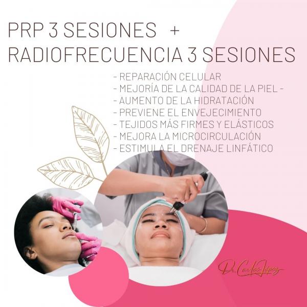 PRP 3 SESIONES + RADIOFRECUENCIA 3 SESIONES 445€ (cara-cuello-escote)
