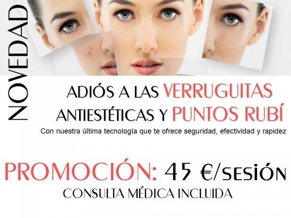 ELIMINACIÓN DE VERRUGUITAS ANTIESTÉTICAS Y PUNTOS RUBÍ en TodoEstetica.com