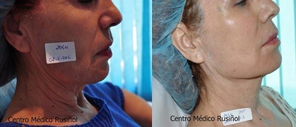 Rejuvenecimiento facial integral con Botox en TodoEstetica.com