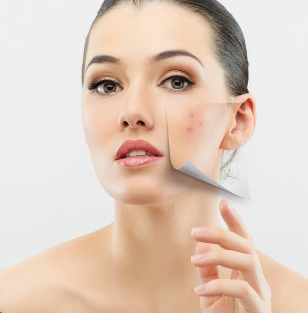 Peeling facial en TodoEstetica.com