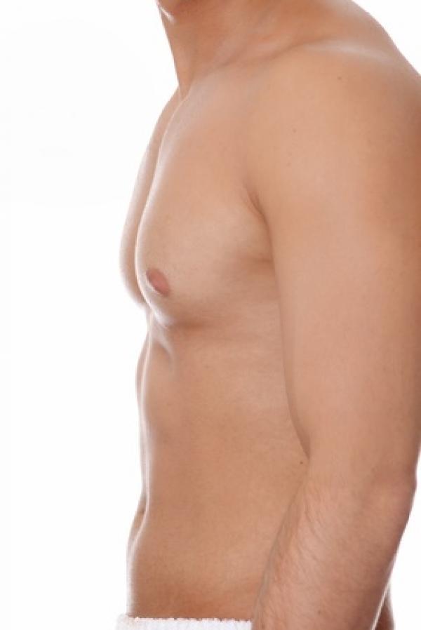 Hidrolipoclasia (liposucción sin cirugía) en TodoEstetica.com