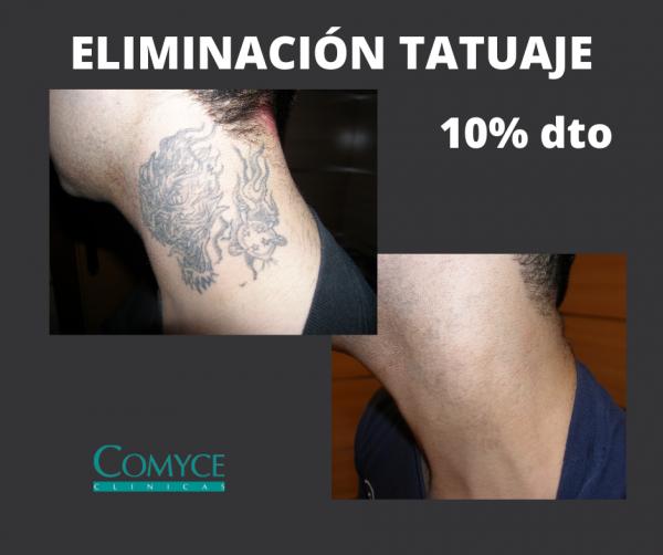 ELIMINACIÓN DE TATUAJES CON LÁSER en TodoEstetica.com