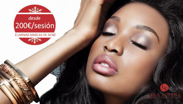 Eliminar marcas de acné y cerrar poros de forma definitiva