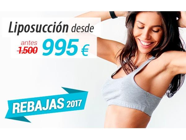 REBAJAS: Liposucción en TodoEstetica.com