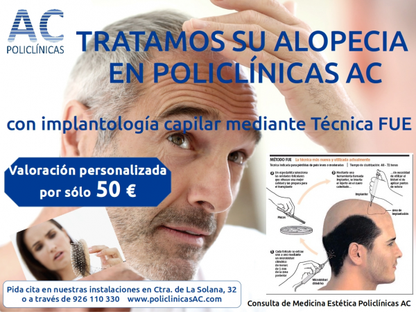 IMPLANTOLOGÍA CAPILAR TÉCNICA FUE EN POLICLÍNICAS AC MANZANARES en TodoEstetica.com