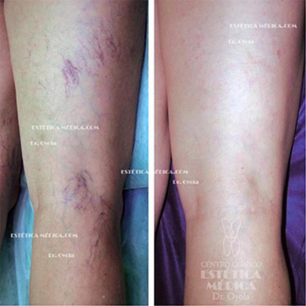 Cure sus varices sin operar ni esclerosar! en TodoEstetica.com