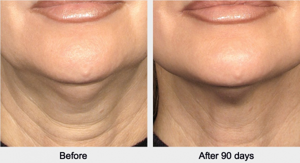 Lifting facial sin cirugia HIFU Ultraterapia