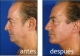Liposucción papada desde 900 euros en TodoEstetica.com