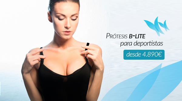 Aumento de pecho, Prótesis B-LITE desde 4890€ en TodoEstetica.com