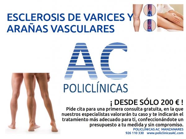 ESCLEROSIS DE VARICES Y ARAÑAS VASCULARES