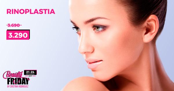 BEAUTY FRIDAY: Rinoplastia  en TodoEstetica.com