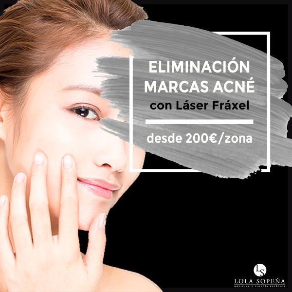Tratamiento Láser para eliminar marcas de Acne, Manchas, cicatrices y estrías - Desde 200 € Zona/sesión