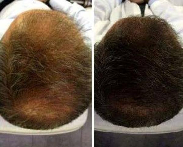 99 € PRP anti caída de cabello - Funciona!