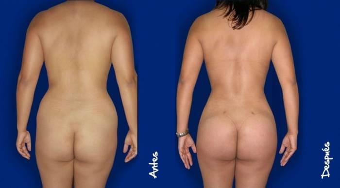 20% de descuento en liposucción