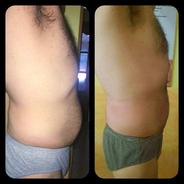 perdida de contorno corporal masculina en TodoEstetica.com