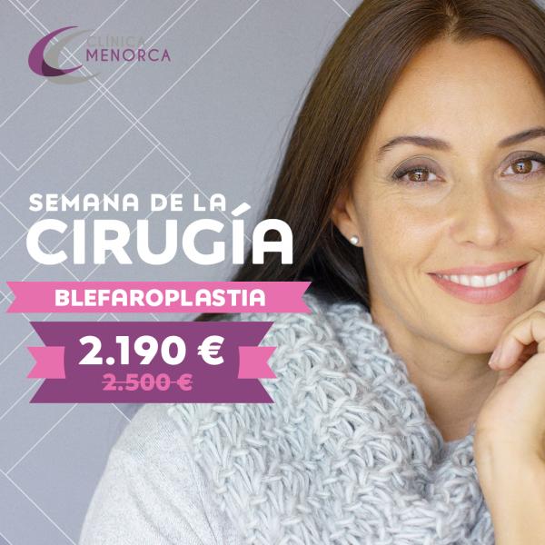 Blefaroplastia ¡registrate ya! en TodoEstetica.com
