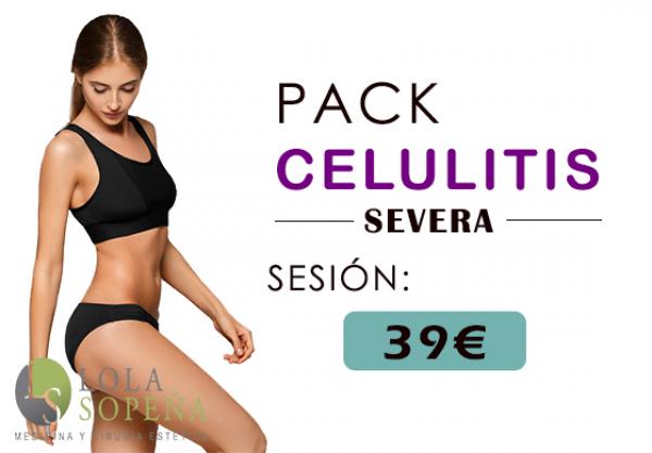Pack De Celulitis Severa 39€/Sesión en TodoEstetica.com