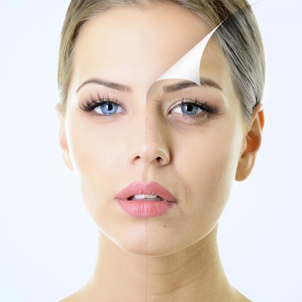 Peeling y mesoterapia con ácido hialuronico y vitaminas. en TodoEstetica.com