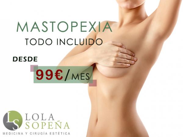 Mastopexia (elevación de pecho) desde 99€/mes