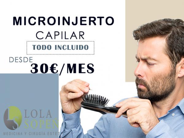 Desde 30€/mes Microinjerto capilar en España