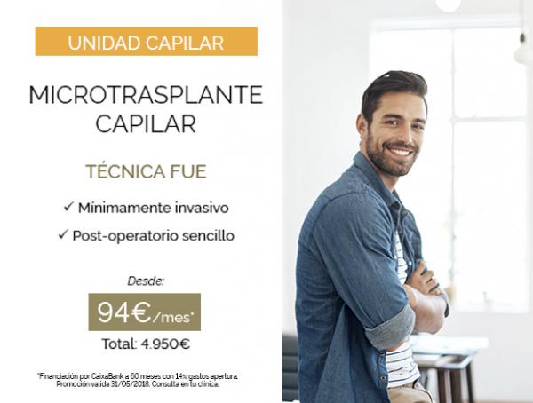 Microtrasplante Capilar - Técnica FUE en TodoEstetica.com