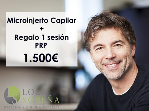 1500€ Microinjerto capilar en España + Regalo una sesión PRP