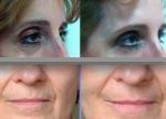 Eliminación arrugas faciales en TodoEstetica.com