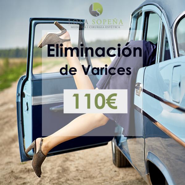 110€ Eliminación de varices