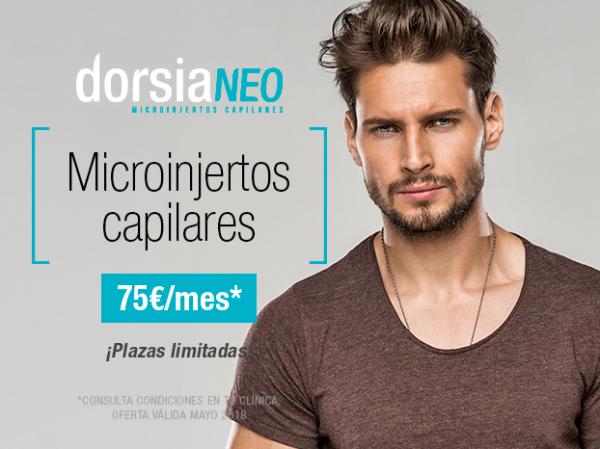 Microinjertos Capilares en DorsiaNeo by Dorsia desde 75€ mes en TodoEstetica.com