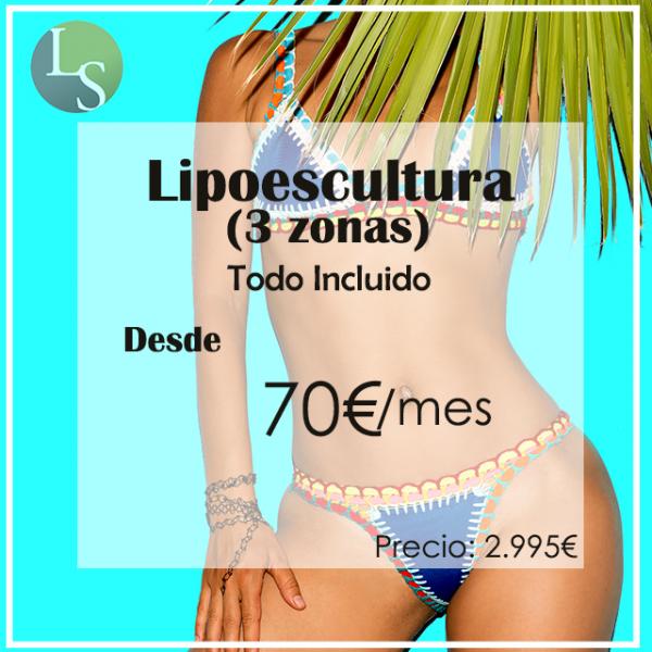 Desde 70€ Lipoescultura (3 zonas) Todo Incluido en TodoEstetica.com