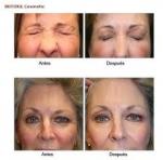 Eliminación de arrugas con BOTOX en TodoEstetica.com