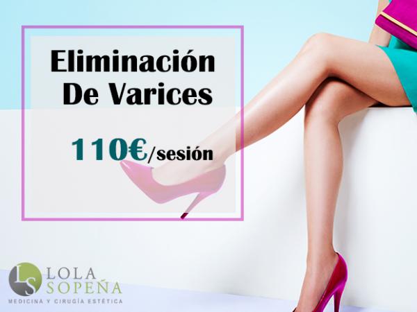 110€/sesión Eliminación de varices