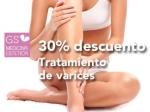 Tratamiento de esclerosis para varices 30% en TodoEstetica.com
