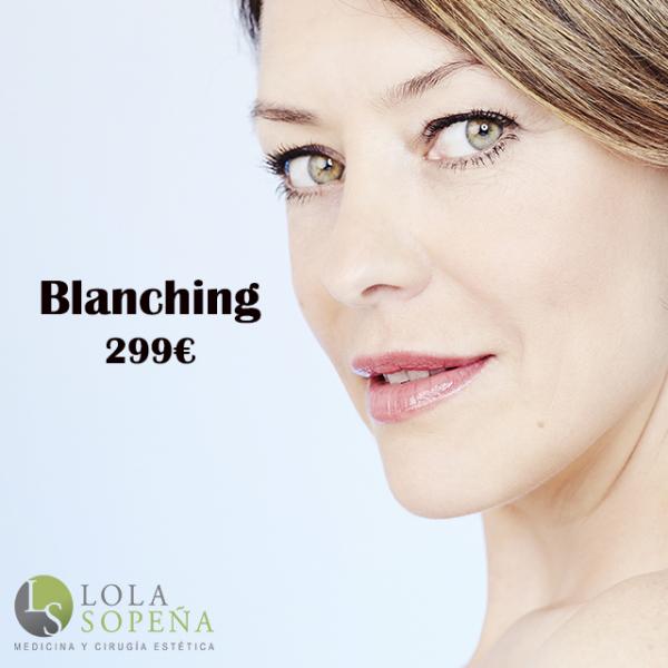 Eliminar arrugas de la zona superior del labio con el método Blanching 299€ en TodoEstetica.com