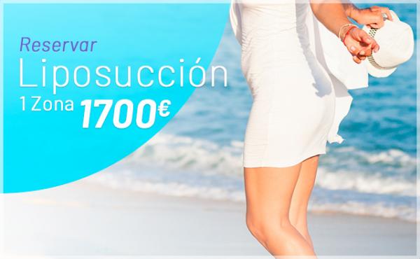 OFERTA: Liposucción en TodoEstetica.com