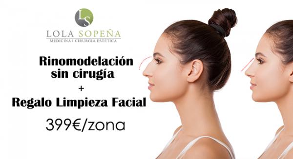Rinomodelación sin cirugía + Regalo Limpieza Facial 399 €/ zona