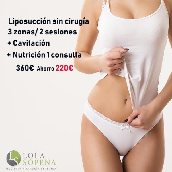 Lipolyx + Cavitación 3 zonas/ 2 sesiones Regalo 1 consulta nutricional 360€