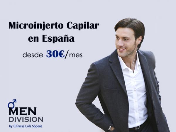 Microinjerto capilar en España desde 30€/mes