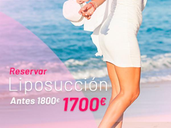 Rebajas Verano: Liposucción en TodoEstetica.com