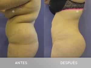 Moldea tus glúteos con la grasa que te sobra DEFINITIVAMENTE en TodoEstetica.com