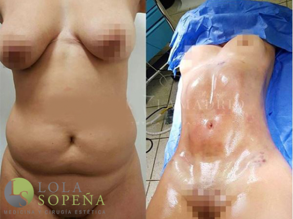 Lipoescultura - Abdominoplastia High Definition 4K  en TodoEstetica.com