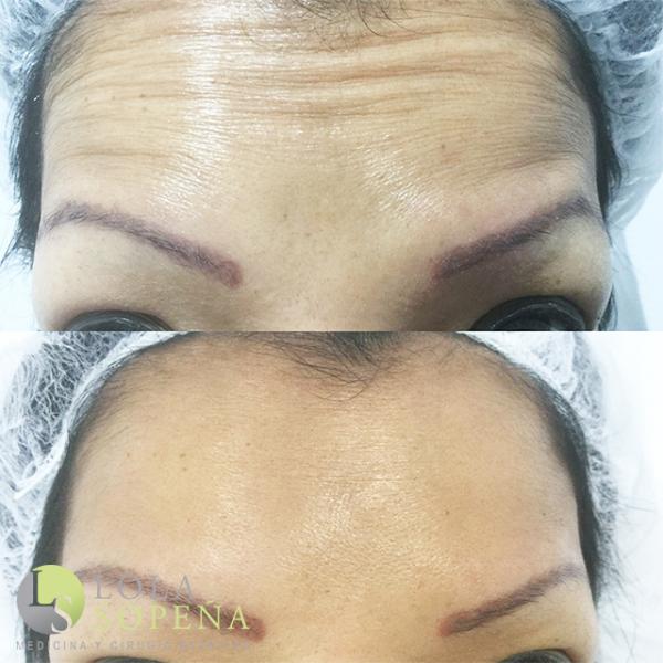 Botox Completo 320€