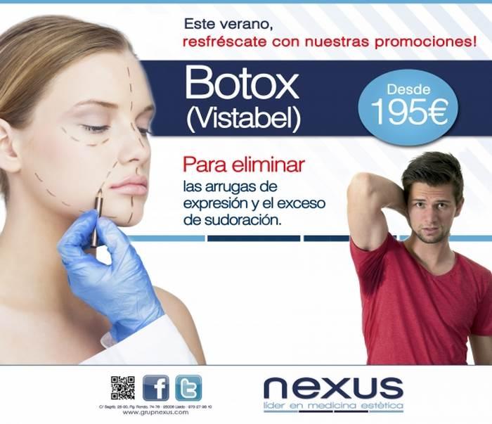 Botox (Vistabel)