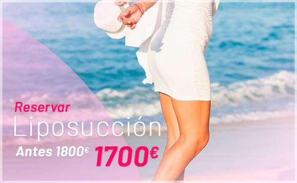 Promoción: 2º Rebajas: Liposucción en TodoEstetica.com