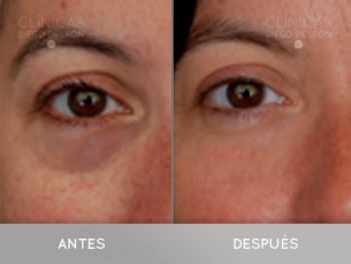 Elimina las ojeras DEFINITIVAMENTE  en TodoEstetica.com