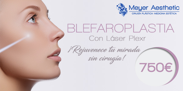 Blefaroplastia SIN cirugía por 750 euros
