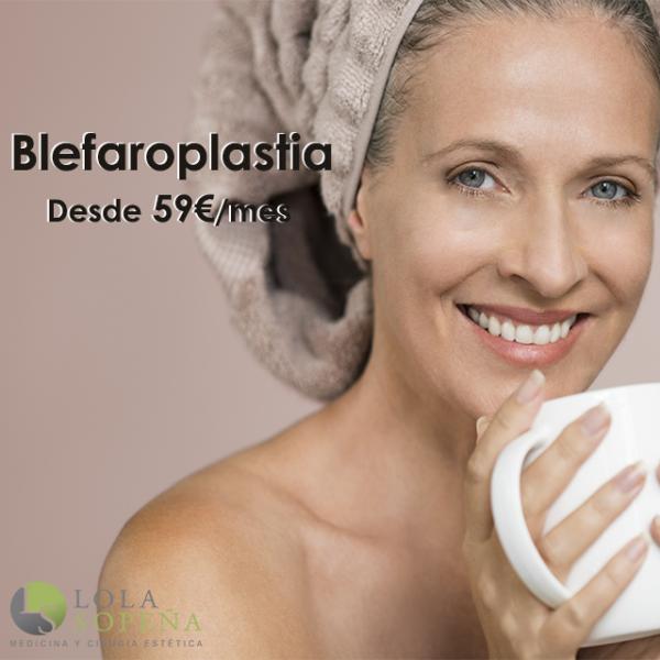 Blefaroplastia desde 59€/mes